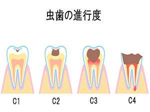 虫歯の進行度